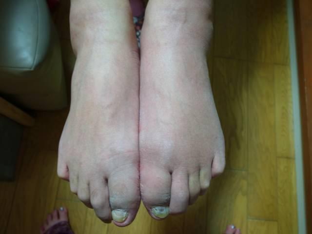 え?本当?足の甲の痛みはこんな理由が!